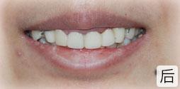 外科正牙美容术