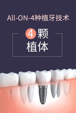 All-ON-4种植牙