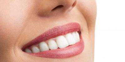 牙槽骨前突怎么办