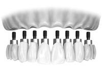 传统栅栏式种植牙