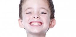 牙齿排列拥挤、紊乱