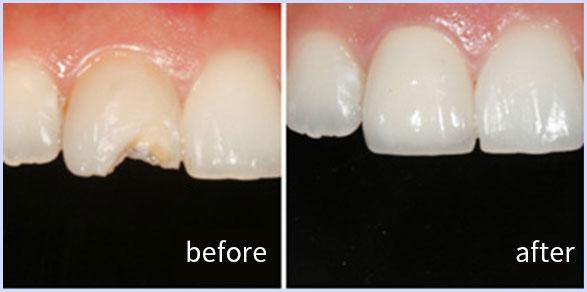 牙齿缺失修复