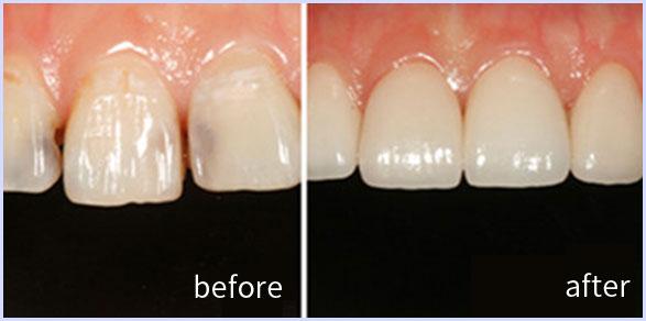 牙髓坏死修复