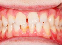 患者口腔治疗前