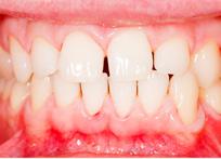 患者口腔治疗后