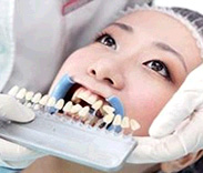 治疗前进行牙齿比色