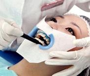 涂抹牙龈保护剂